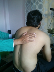 Ild-ayurvedic treatment