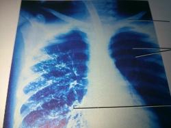 Ayurvedic treatment interstitial lung disease