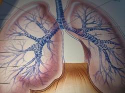 Interstitial lung disease  in Ayurveda